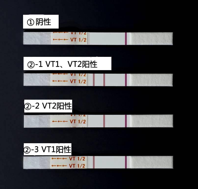 NH免疫层析VT1/2