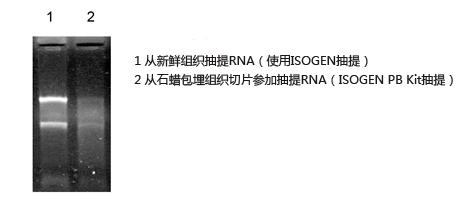 石蜡包埋组织切片RNA提取试剂盒
